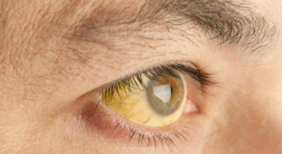 Febre amarela: o que é a doença? Quando devo tomar a vacina?