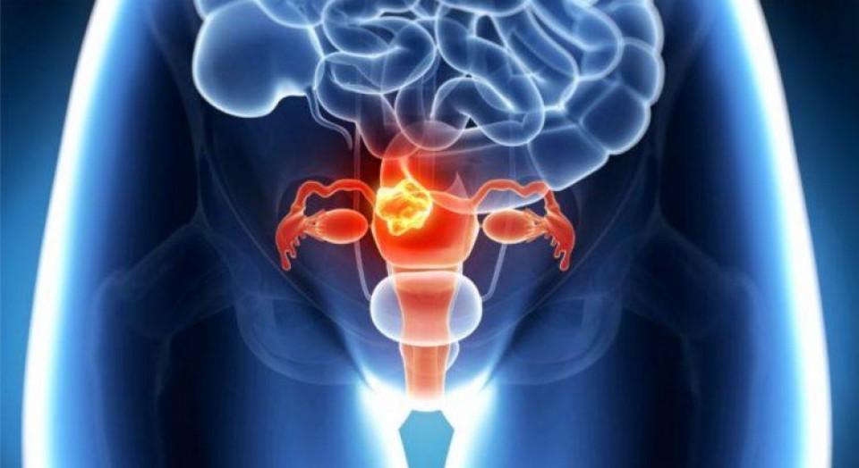 7 informações que toda mulher precisa saber sobre Câncer de colo de útero