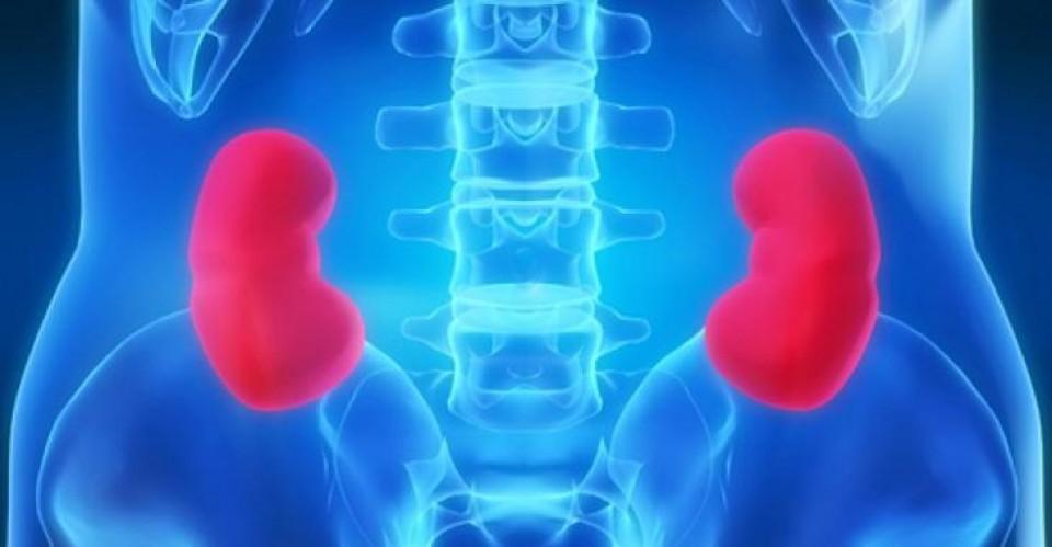 Cintilografia renal com DMSA