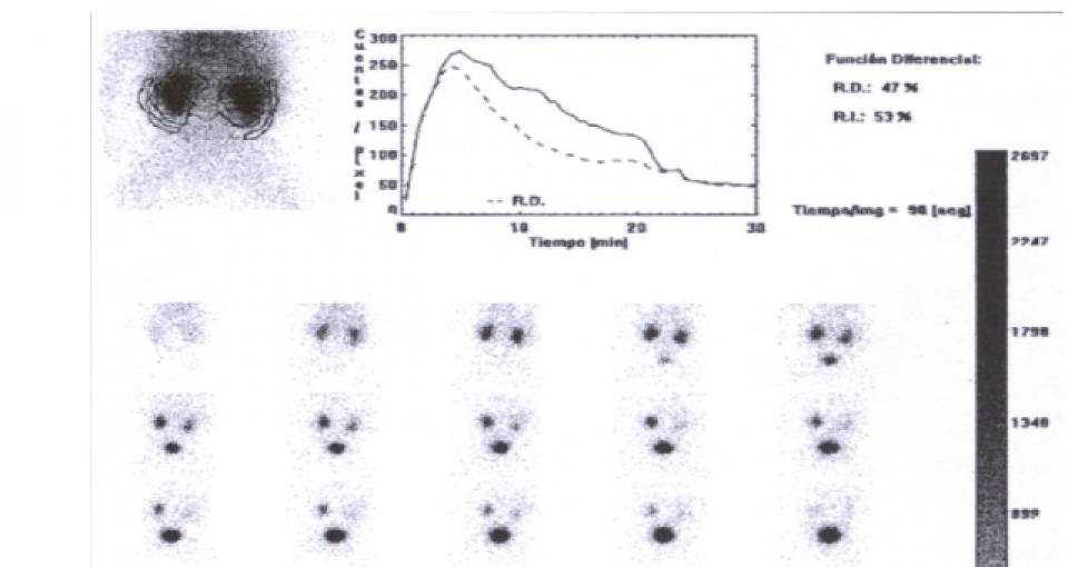 Cintilografia renal com DTPA_Tc99m