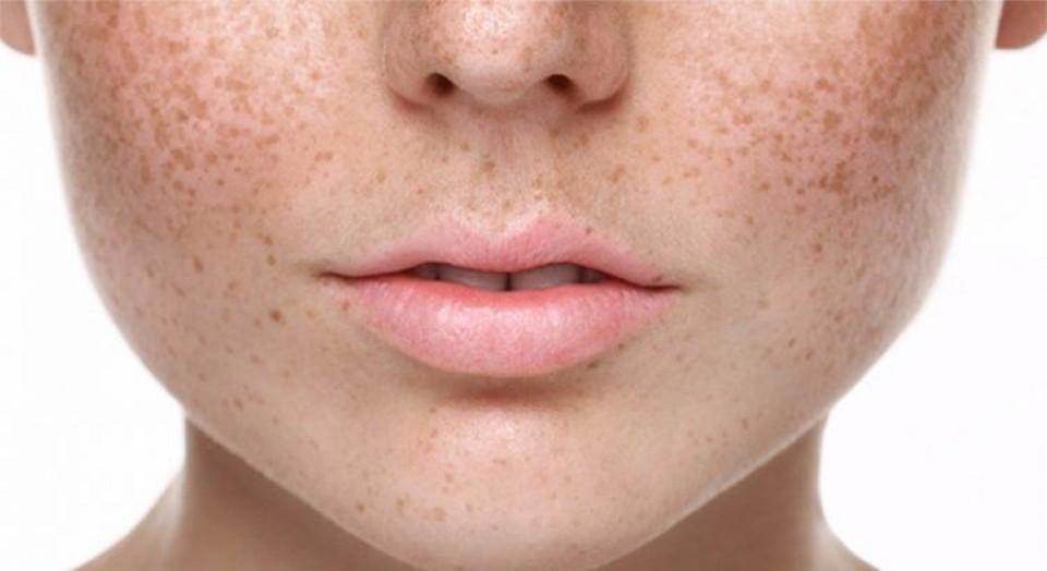 Melasma: 7 características que você precisa saber!