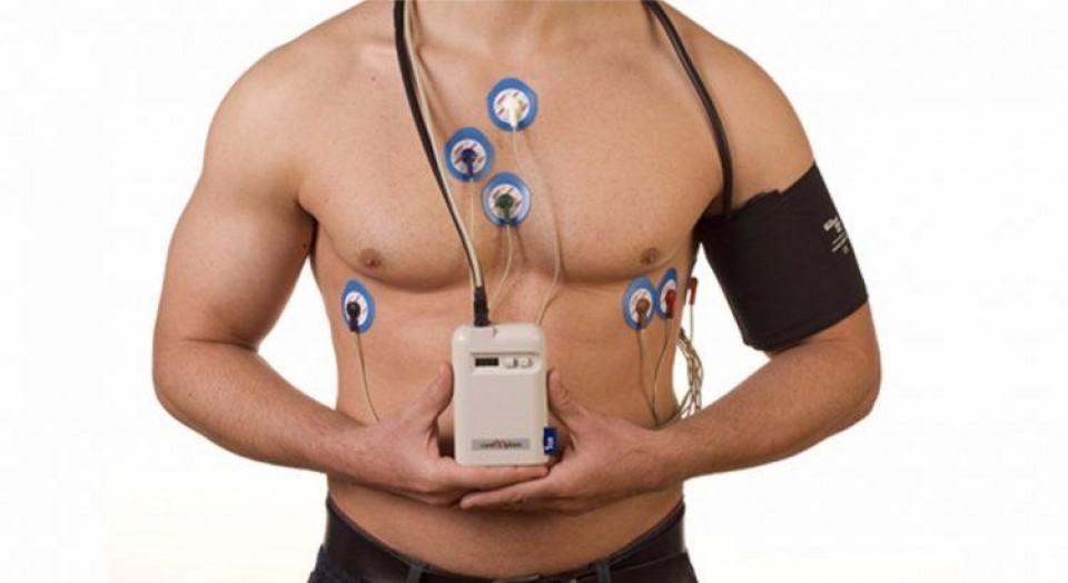O que é o Exame de Holter? Para que serve?