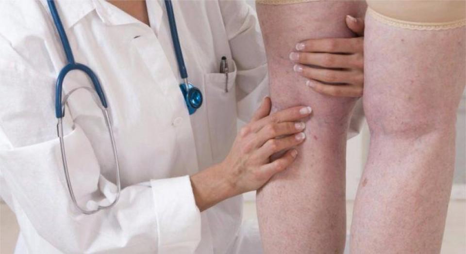 O que faz um angiologista? Conheça 5 doenças tratadas por esta especialidade!
