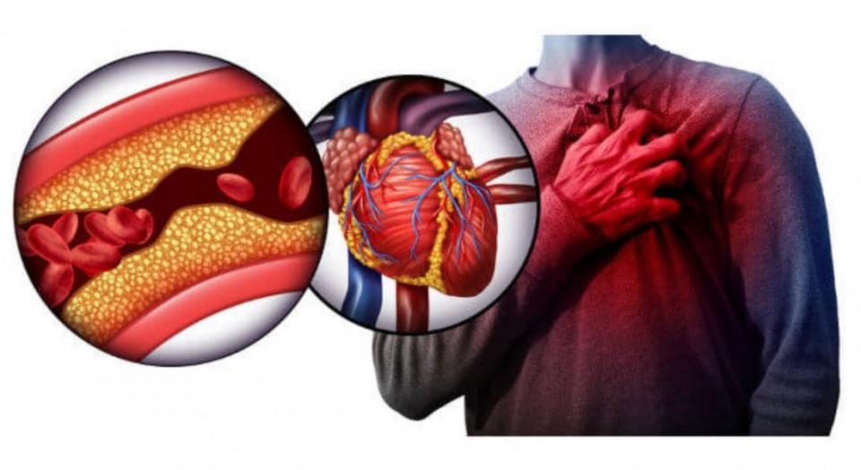 Infarto agudo do miocárdio: quem tem mais risco de desenvolver?