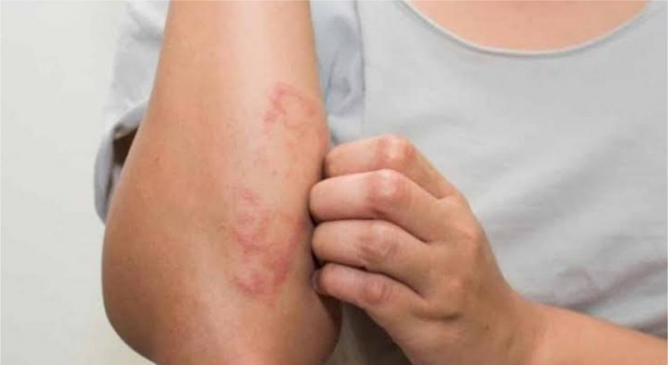 Hanseníase: mitos e verdades sobre esta doença