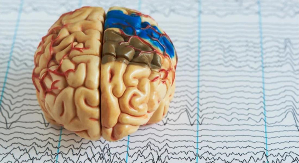 Morte cerebral: tudo que você precisa saber sobre o assunto!