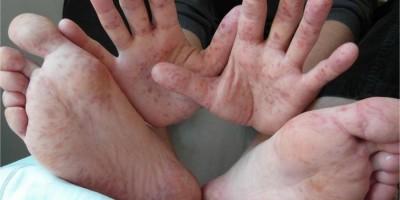 Síndrome mão-pé-boca: o que é? Como se transmite?